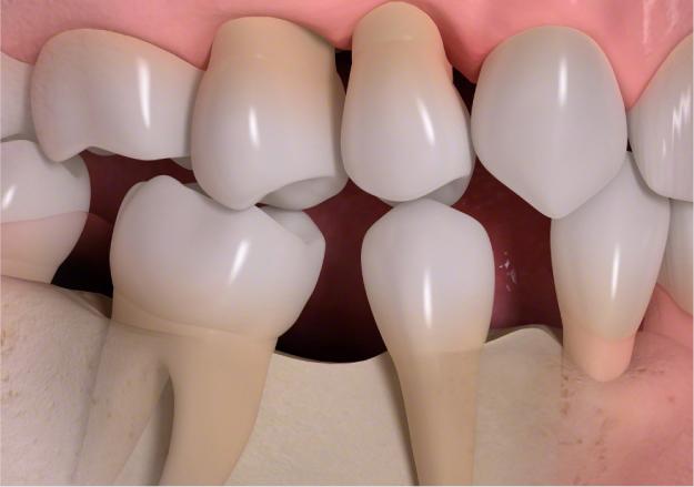 隙間が広がり歯が移動している様子